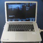 terason-t3200-ultrasound-equipment1